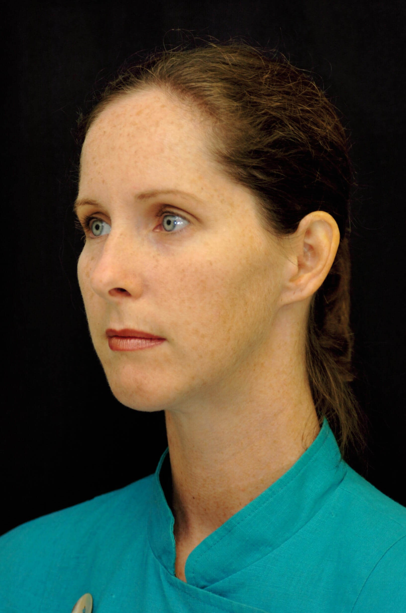 DALLAS WOMAN RESTORES BALANCE TO PROFILE WITH CHIN IMPLANT SURGERY
