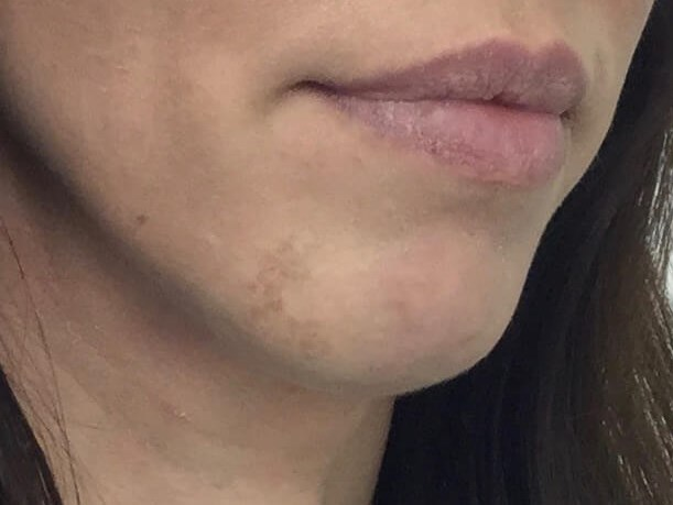 WOMAN IN DALLAS, TEXAS HAS CHIN AUGMENTATION WITH VOLUMA DERMAL FILLER