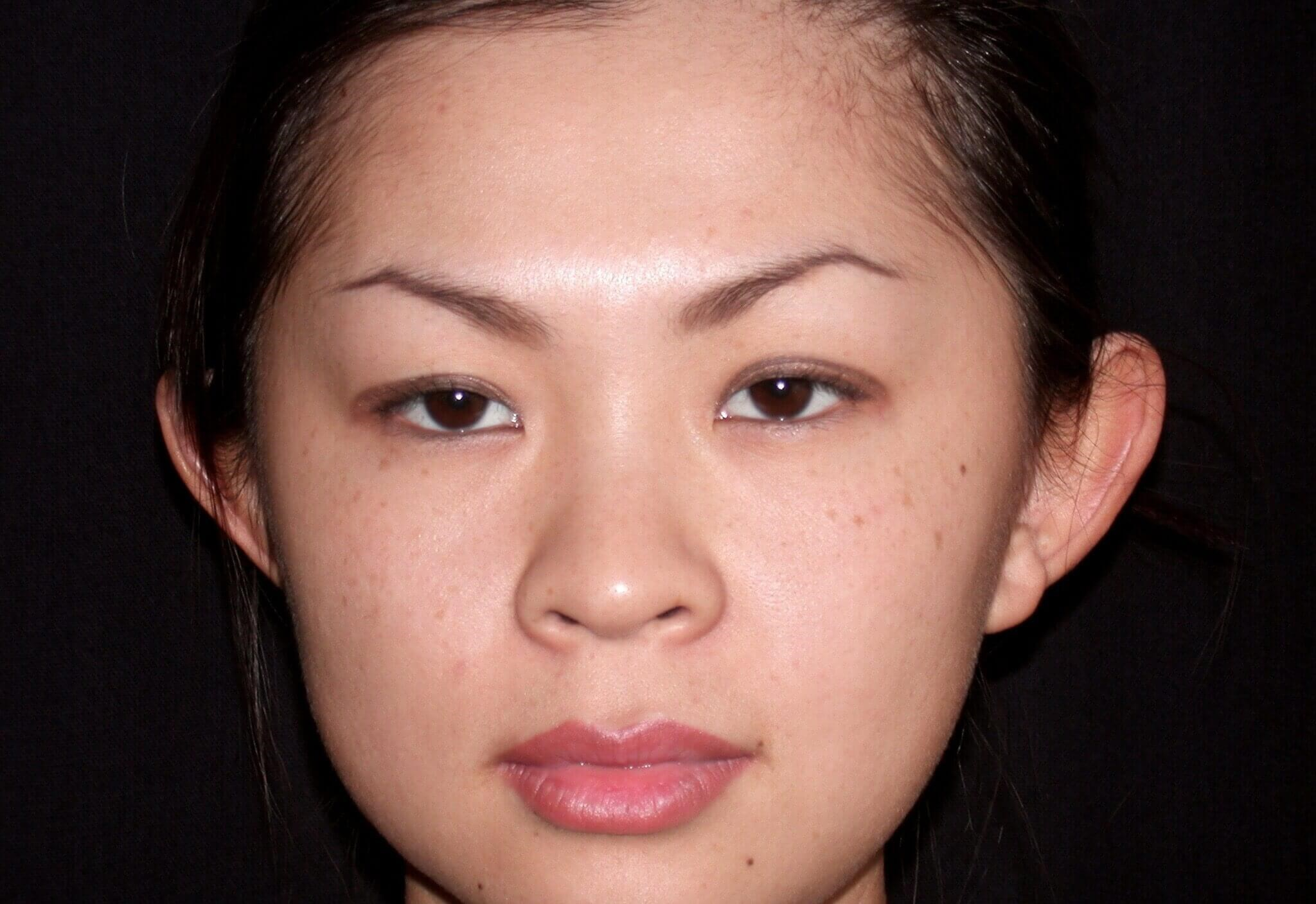 DALLAS, TEXAS WOMAN HAS OTOPLASTY EAR SURGERY