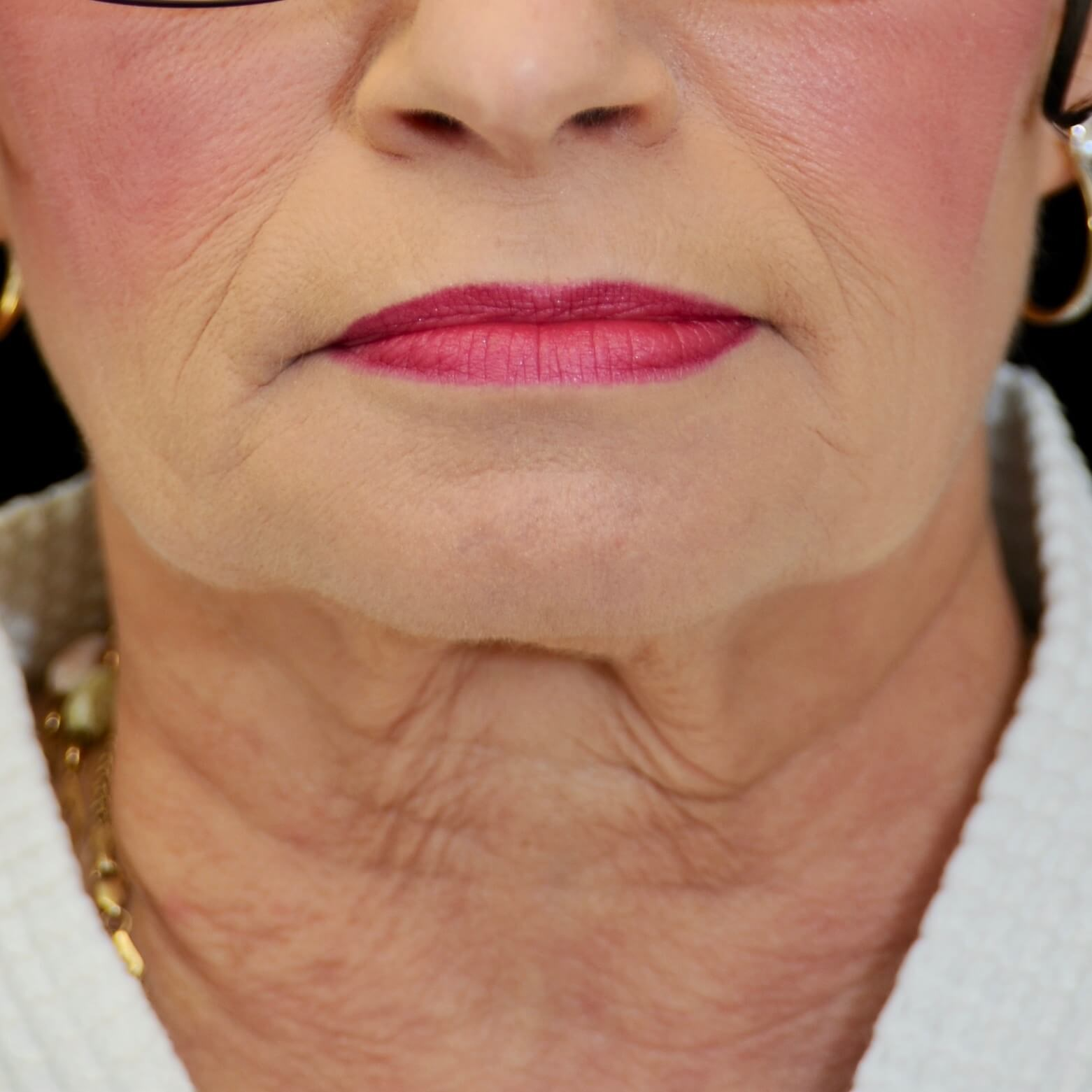 WOMAN IN DALLAS, TEXAS HAS QUICKLIFT WITH CENTRAL NECK LIFT