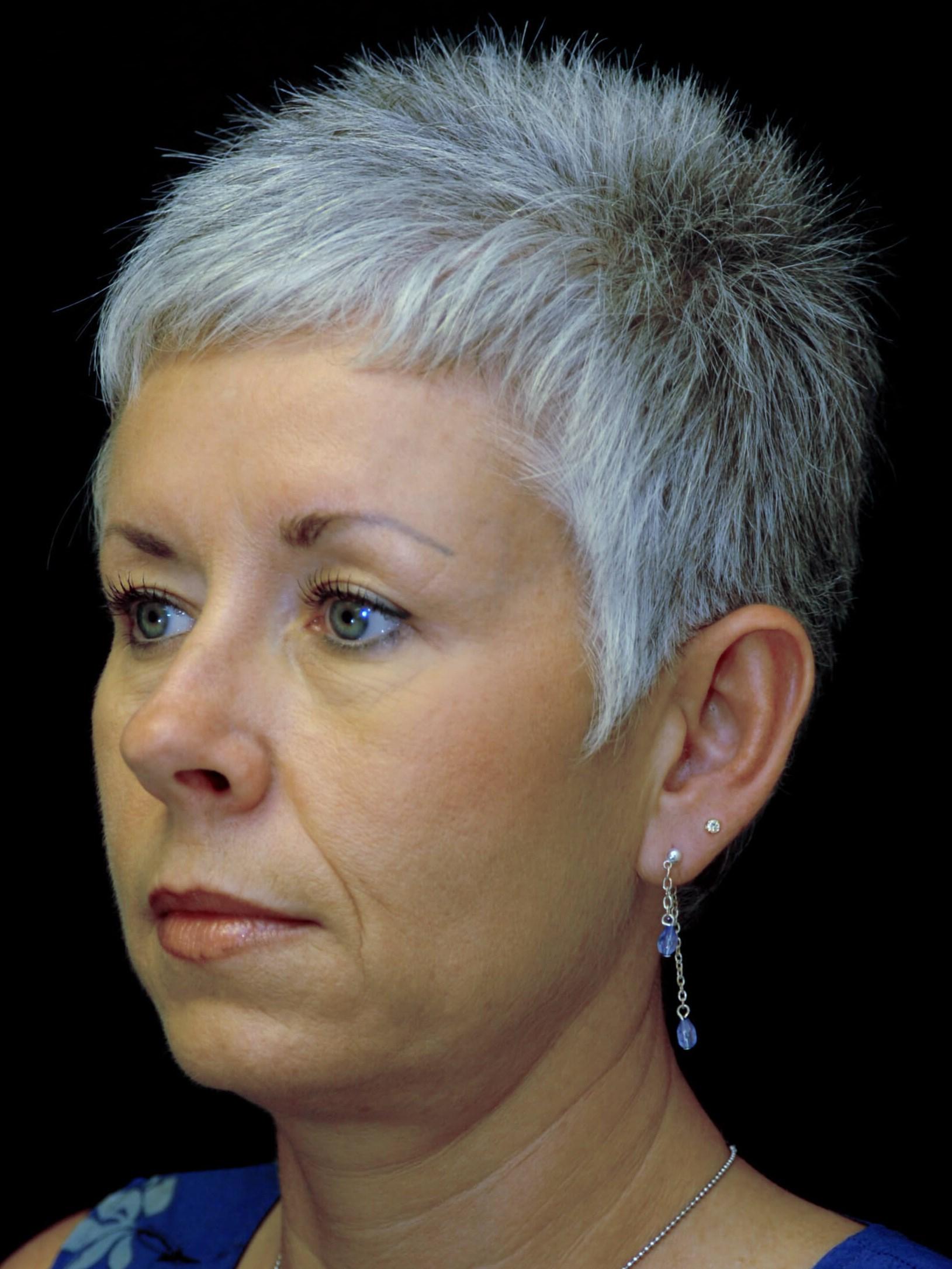 DALLAS WOMAN REJUVENATES LOOK BY HAVING UPPER EYELID PROCEDURE