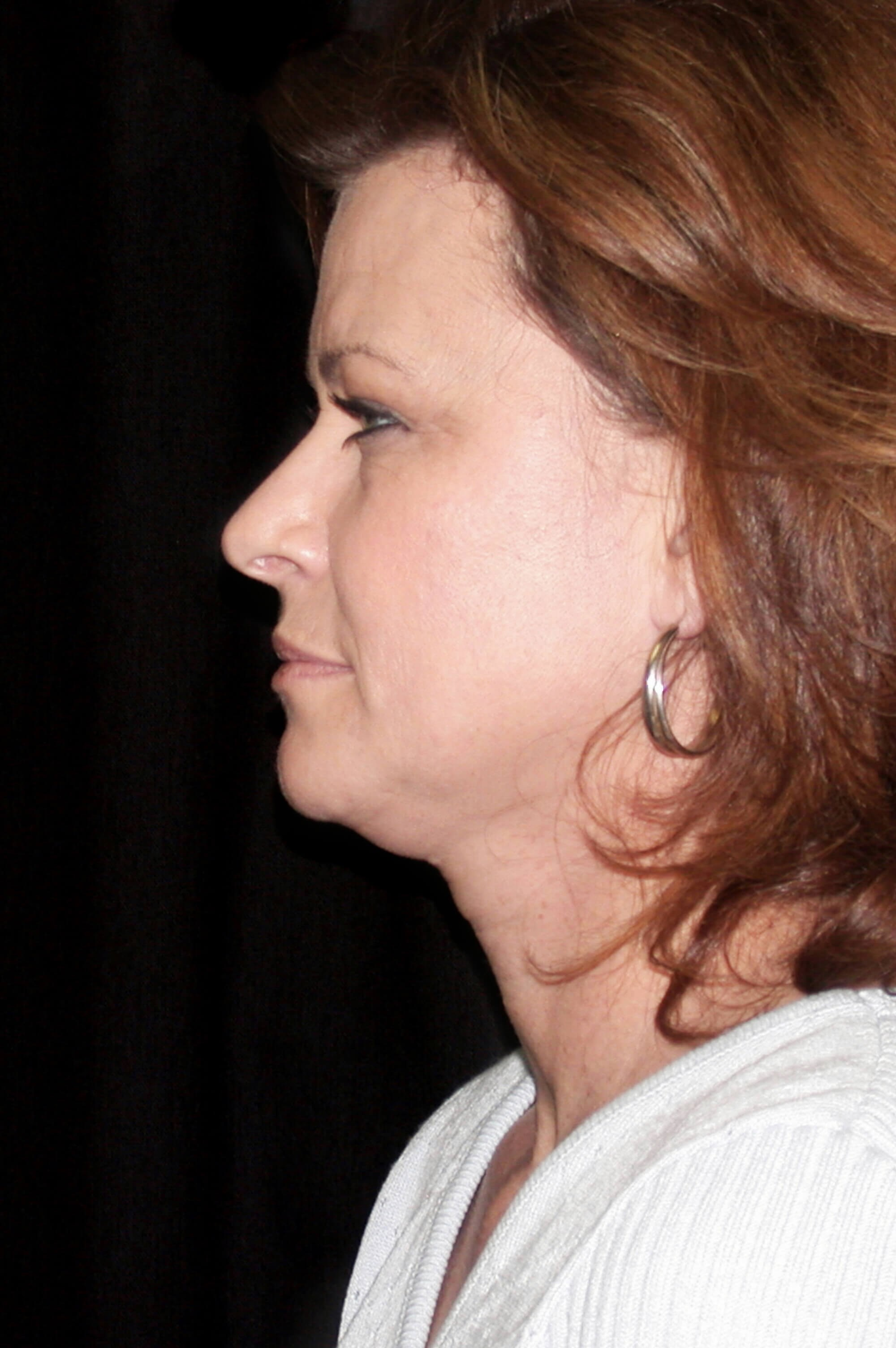 DALLAS, TEXAS WOMAN REJUVENATES LOOK WITH FACELIFT AND NECK LIFT