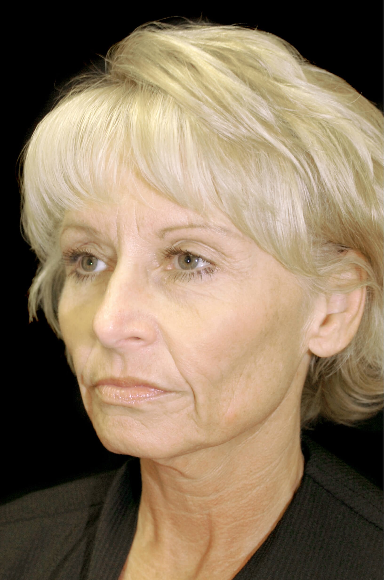 DALLAS, TEXAS WOMAN REJUVENATES HER APPEARANCE BY HAVING A FACELIFT.