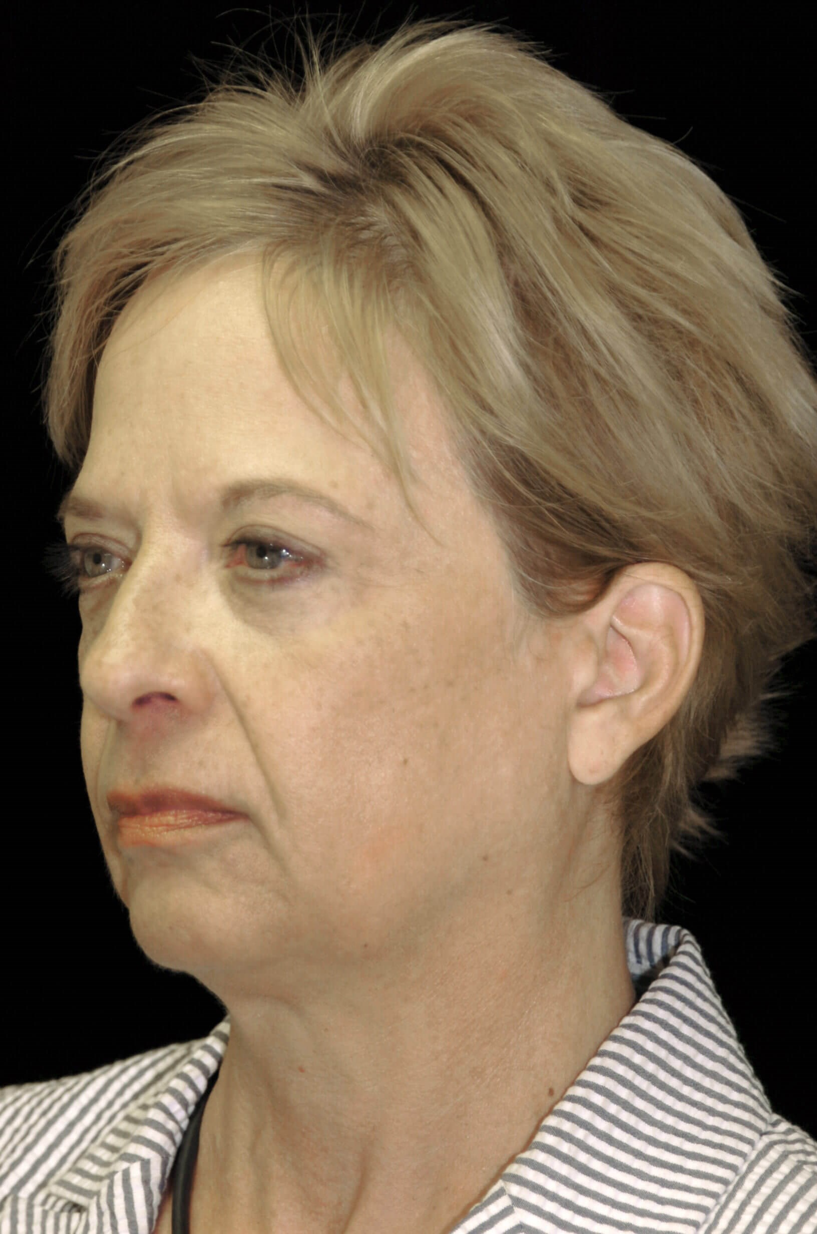 PLANO, TEXAS WOMAN REVITALIZES HER LOOK BY HAVING A FACELIFT