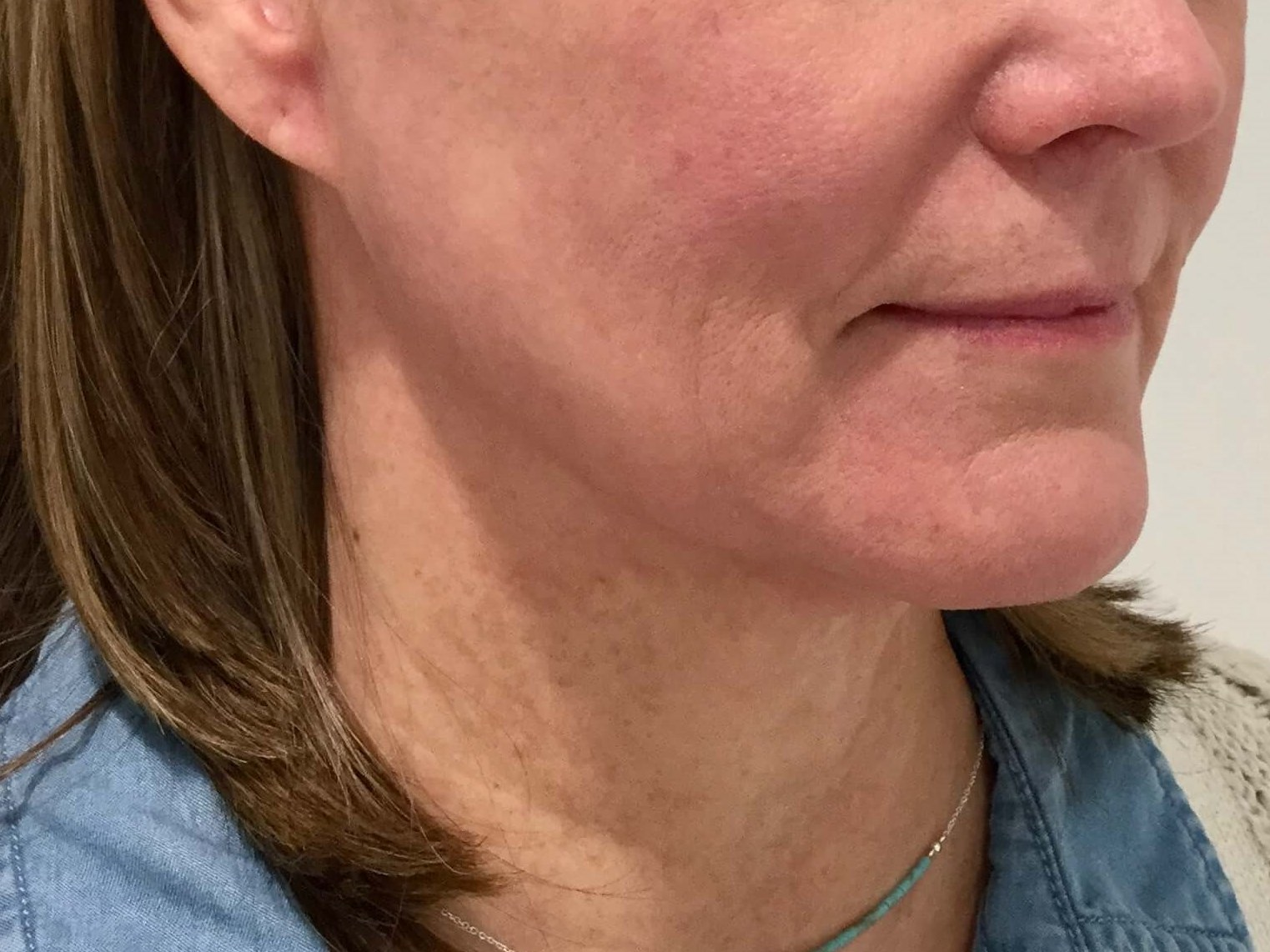 WOMAN IN DALLAS, TEXAS HAS FACELIFT PROCEDURE