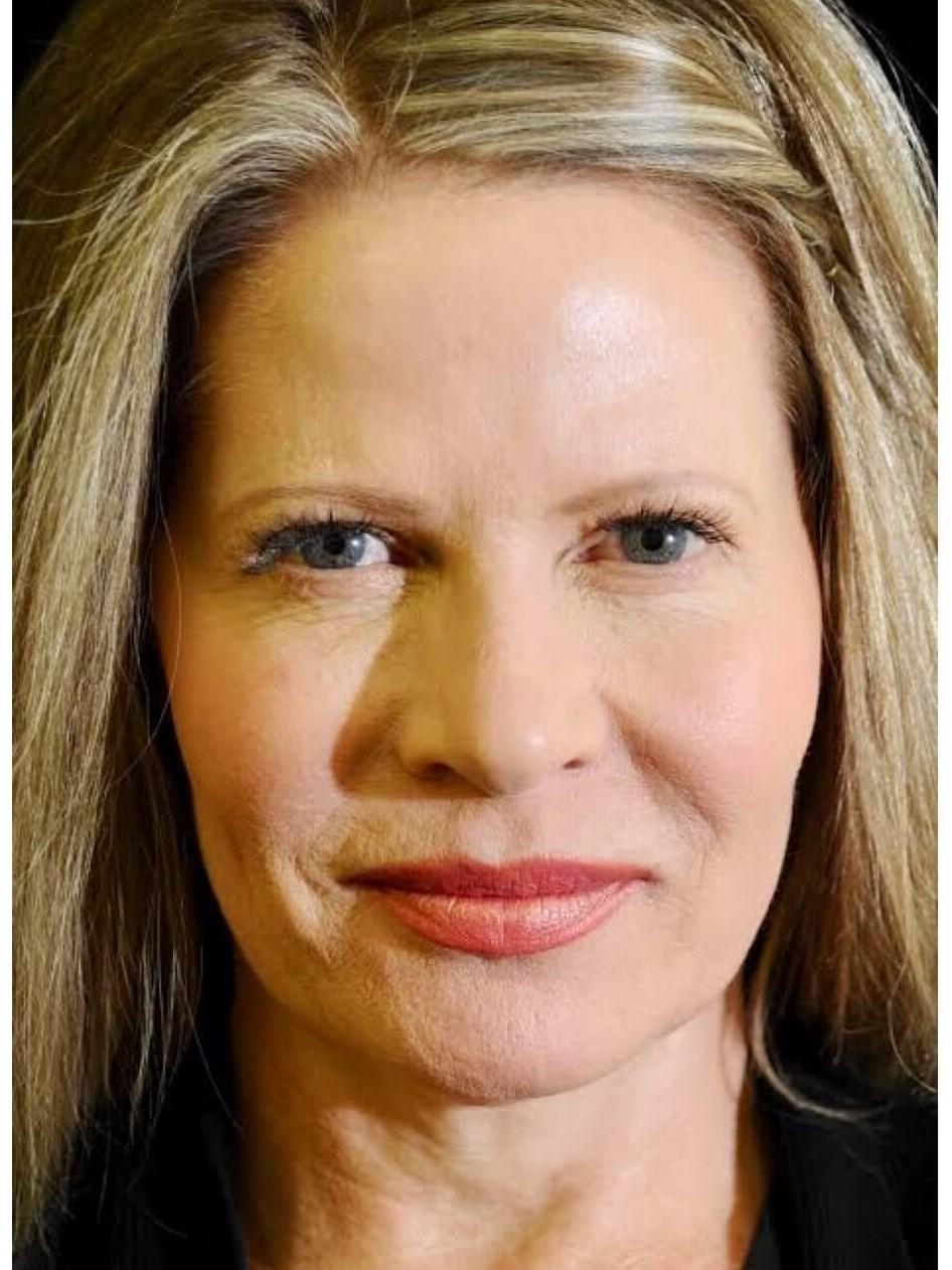 DALLAS, TEXAS WOMAN HAS BELLAFILL COLLAGEN INJECTIONS