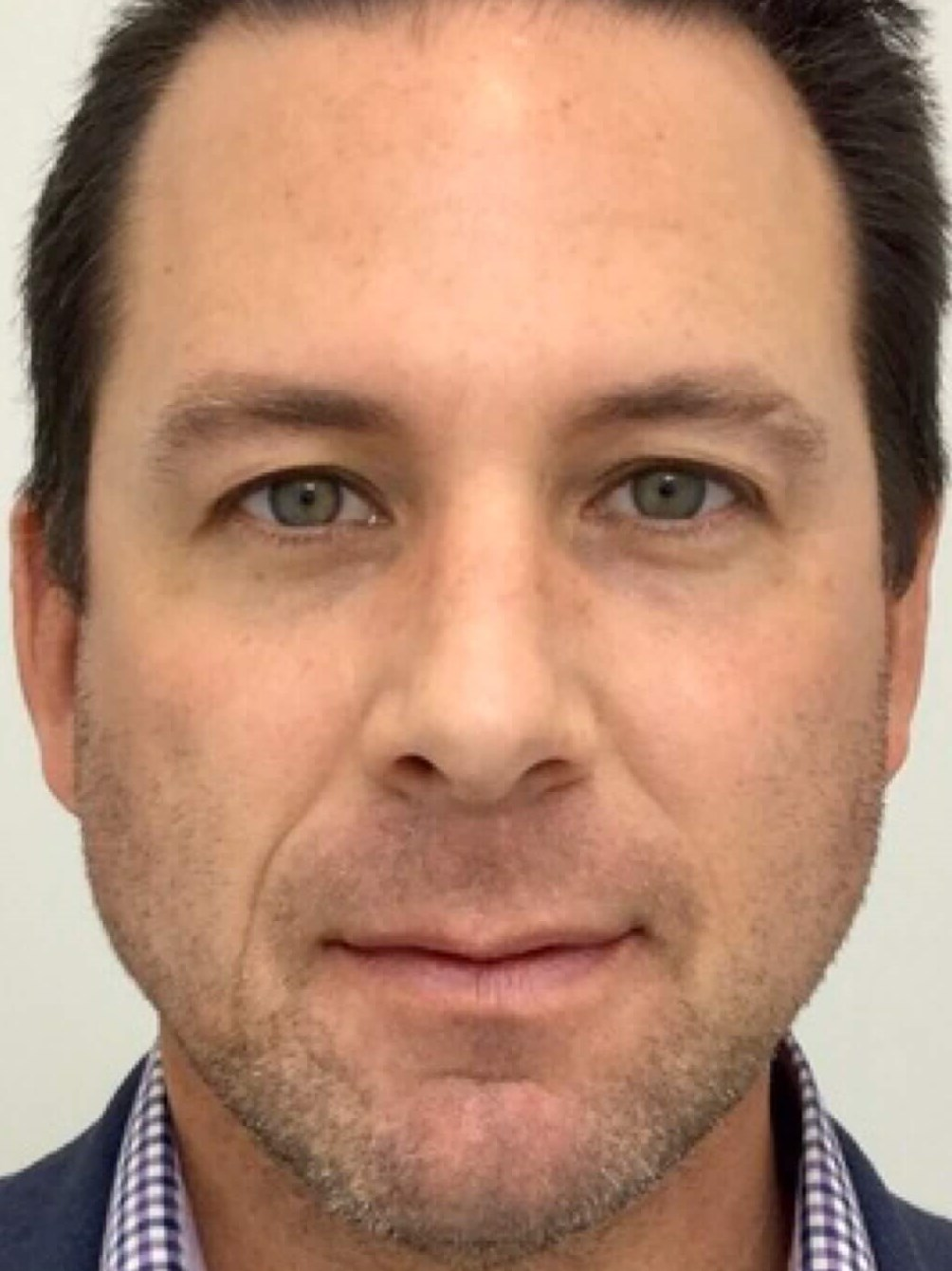 DALLAS MAN HAS BELLAFILL COLLAGEN INJECTIONS TO IMPROVE MIDFACE VOLUME LOSS
