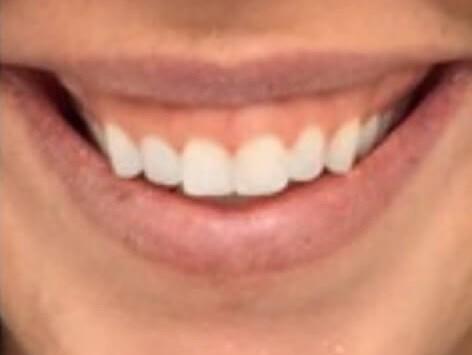 SMILE REJUVENATION USING BOTOX AND RESTYLANE REFYNE DERMAL FILLER