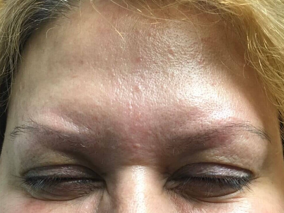 DALLAS, TEXAS WOMAN HAS BOTOX COSMETIC TREATMENT TO FOREHEAD AND GLABELLA
