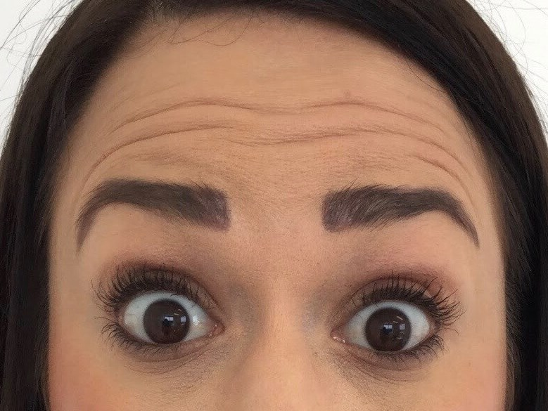 DALLAS WOMAN HAS BOTOX TREATMENT TO FOREHEAD, GLABELLA AND CROW'S FEET