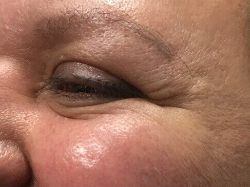 DALLAS, TEXAS WOMAN HAS BOTOX COSMETIC TREATMENT TO CROW'S FEET