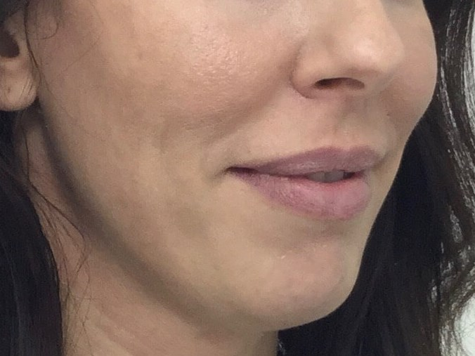 WOMAN IN DALLAS, TEXAS HAS MEDICAL GRADE CHEMICAL PEEL