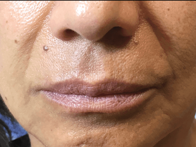 DALLAS, TEXAS WOMAN HAS SMILE LINE TREATMENT WITH JUVEDERM VOLLURE DERMAL FILLER