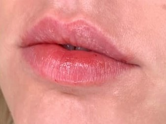 LESS IS MORE WITH 1/2 SYRINGE OF JUVEDERM LIP FILLER FOR DALLAS WOMAN