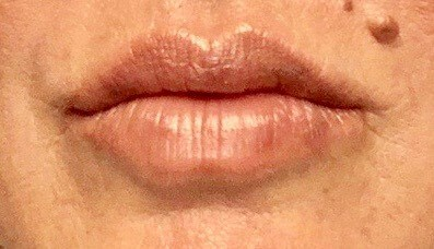 DALLAS, TEXAS WOMAN HAS LIP AUGMENTATION WITH JUVEDERM ULTRA PLUS DERMAL FILLER