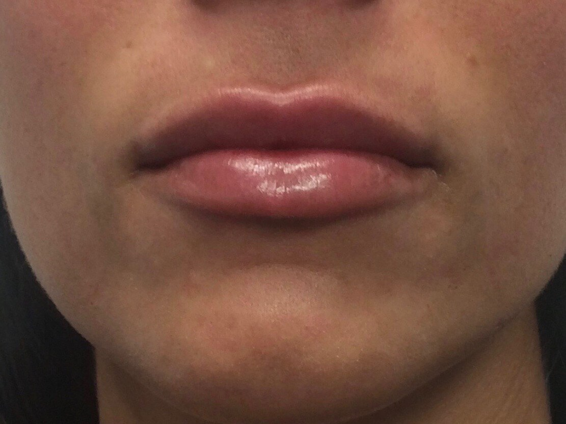 WOMAN IN DALLAS, TEXAS HAS LIP AUGMENTATION WITH JUVEDERM VOLLURE DERMAL FILLER