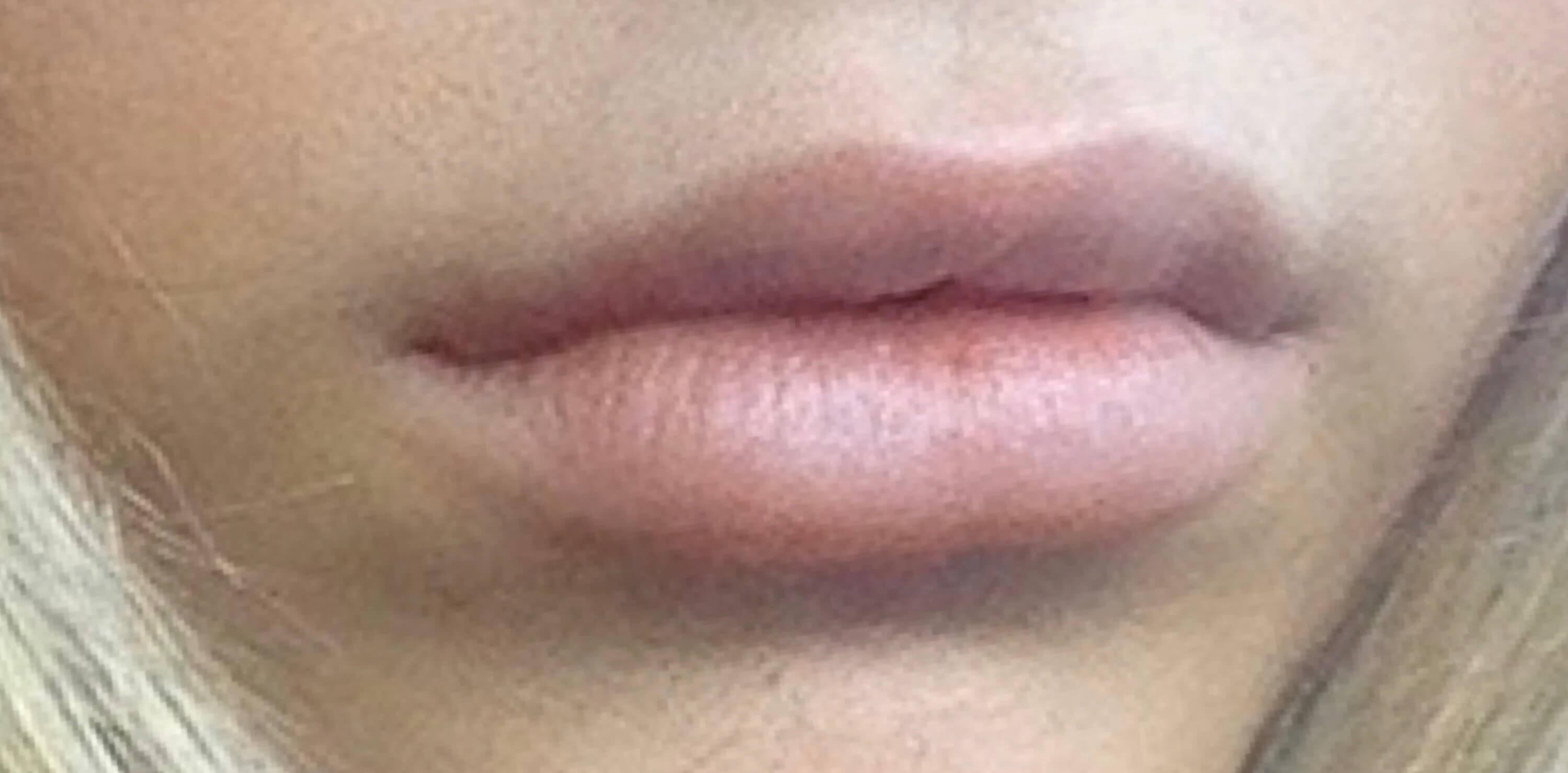 WOMAN IN DALLAS, TEXAS HAS LIP AUGMENTATION WITH JUVEDERM ULTRA PLUS FILLER