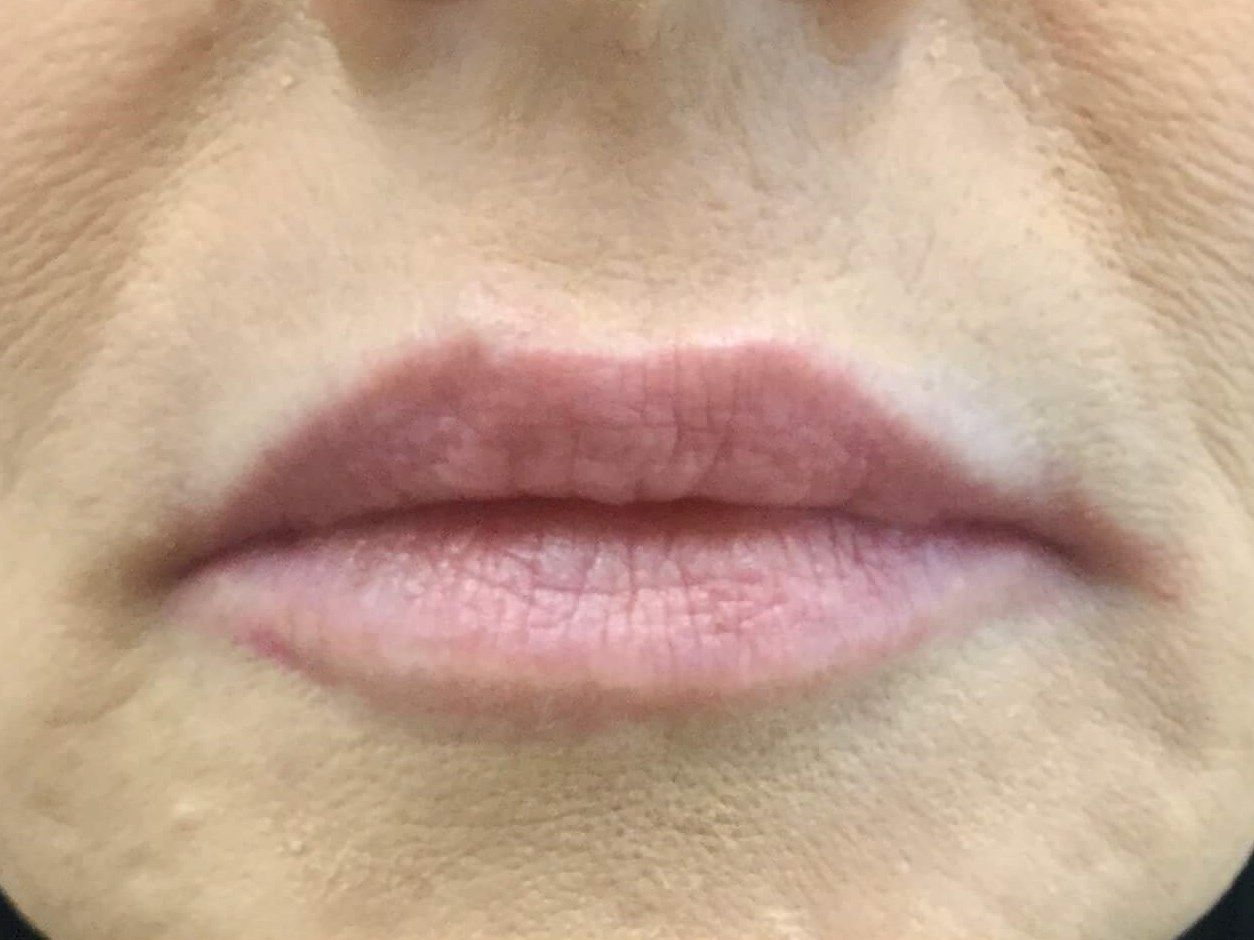 WOMAN IN DALLAS HAS LIP ENHANCEMENT WITH JUVEDERM VOLLURE