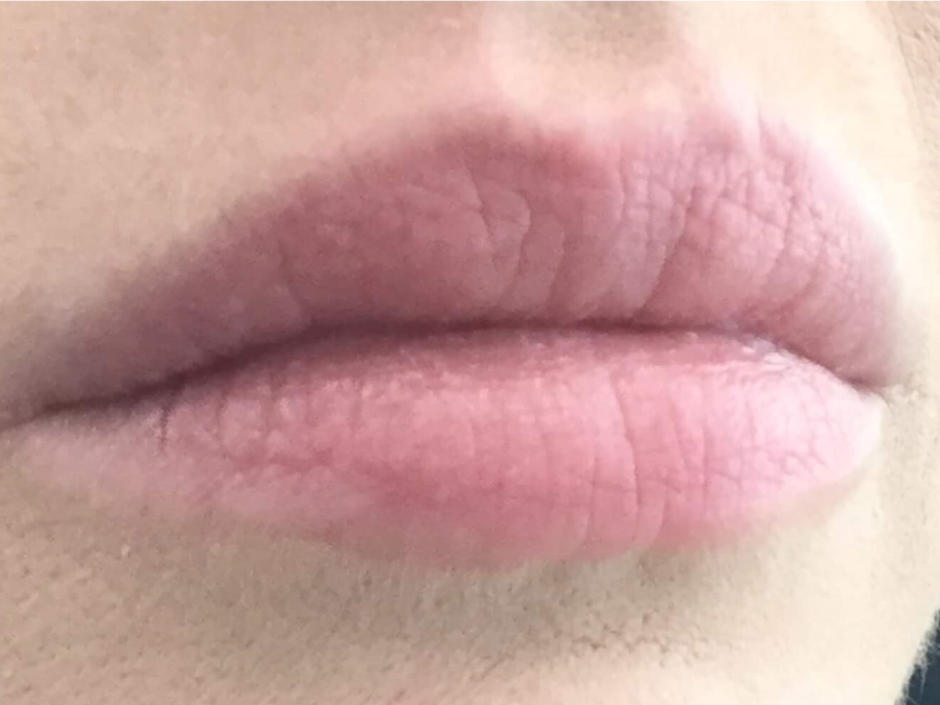 DALLAS WOMAN HAS LIP AUGMENTATION USING JUVEDERM ULTRA PLUS