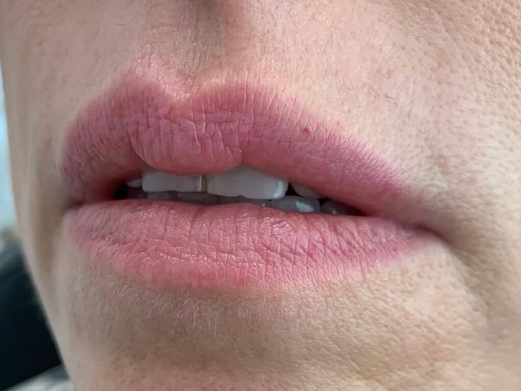 DALLAS WOMAN HAS YOUTHFUL LIPS AGAIN THANKS TO JUVEDERM AND CRISTY DEWEESE