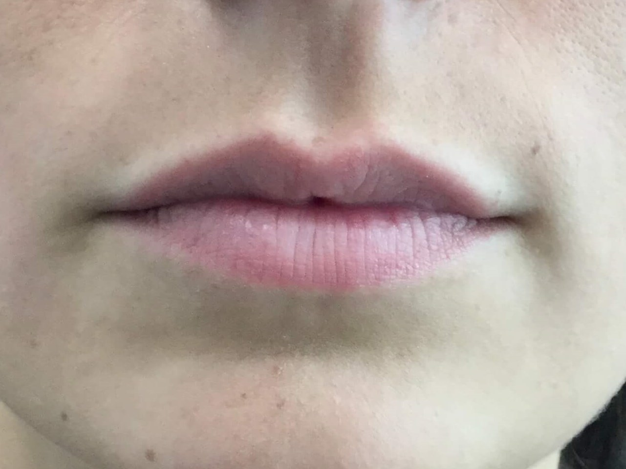 DALLAS WOMAN HAS LIP AUGMENTATION WITH JUVEDERM VOLLURE