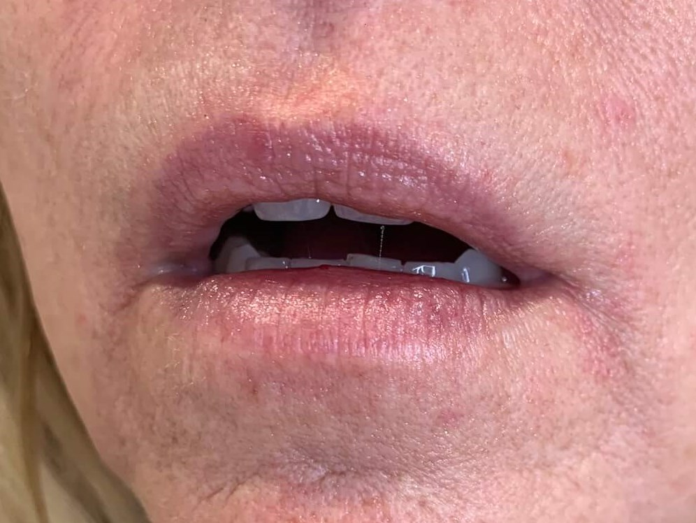 JUVEDERM VOLLURE USED TO FILL AND DEFINE LIPS FOR DALLAS WOMAN