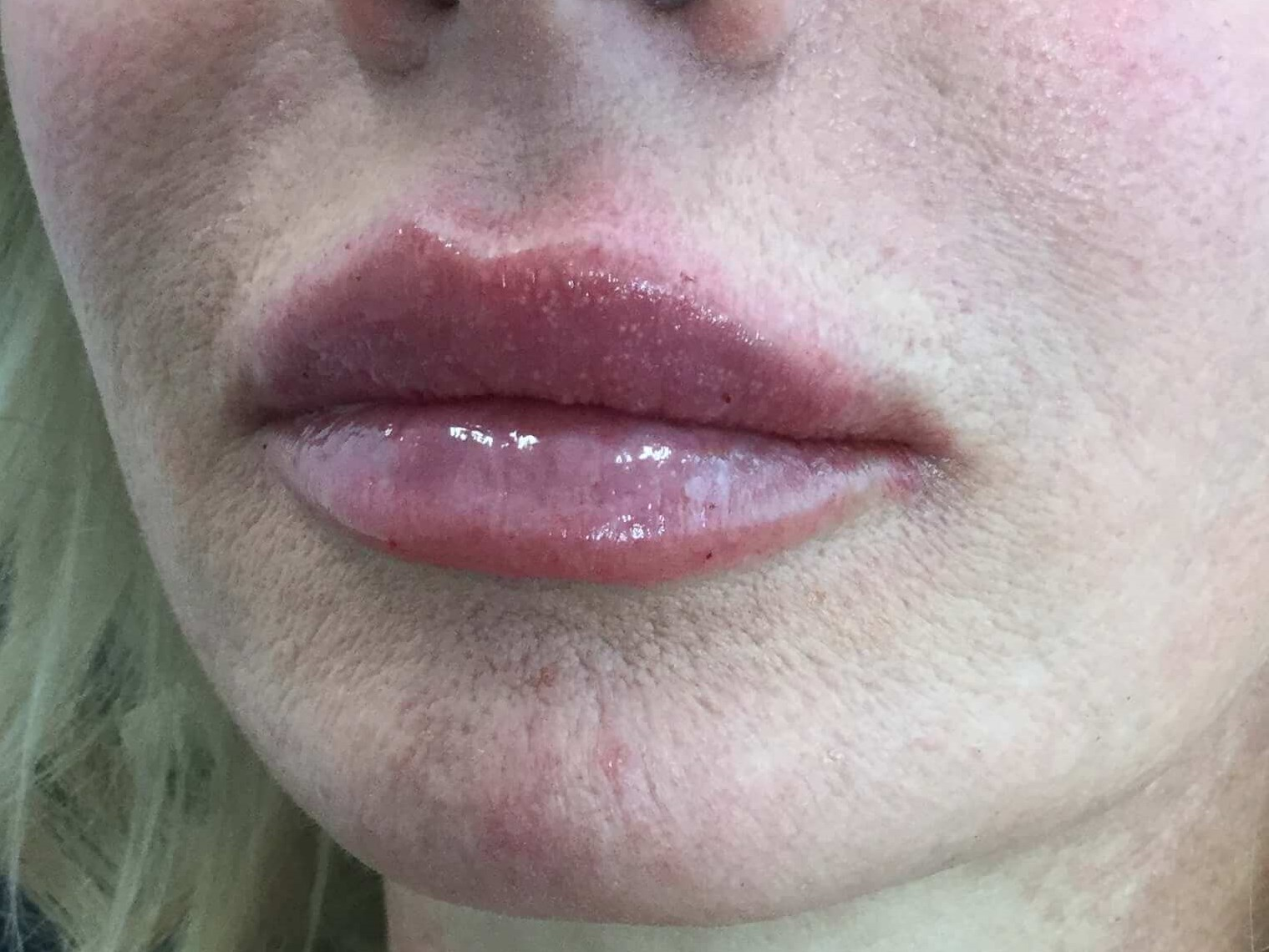 WOMAN IN DALLAS HAS LIP AUGMENTATION WITH 1 SYRINGE OF VERSA DERMAL FILLER