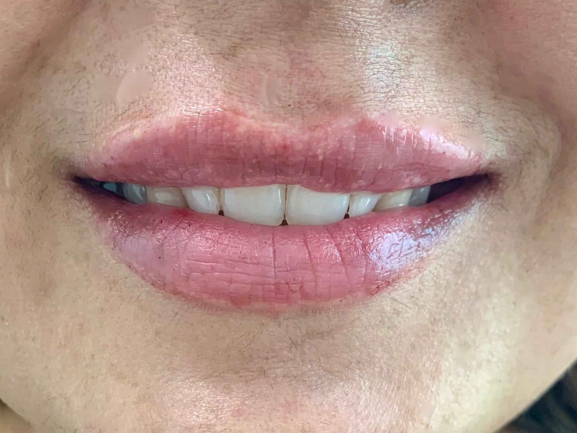 DALLAS WOMAN HAS SUBTLE LIP AUGMENTATION WITH REVANESSE VERSA DERMAL FILLER