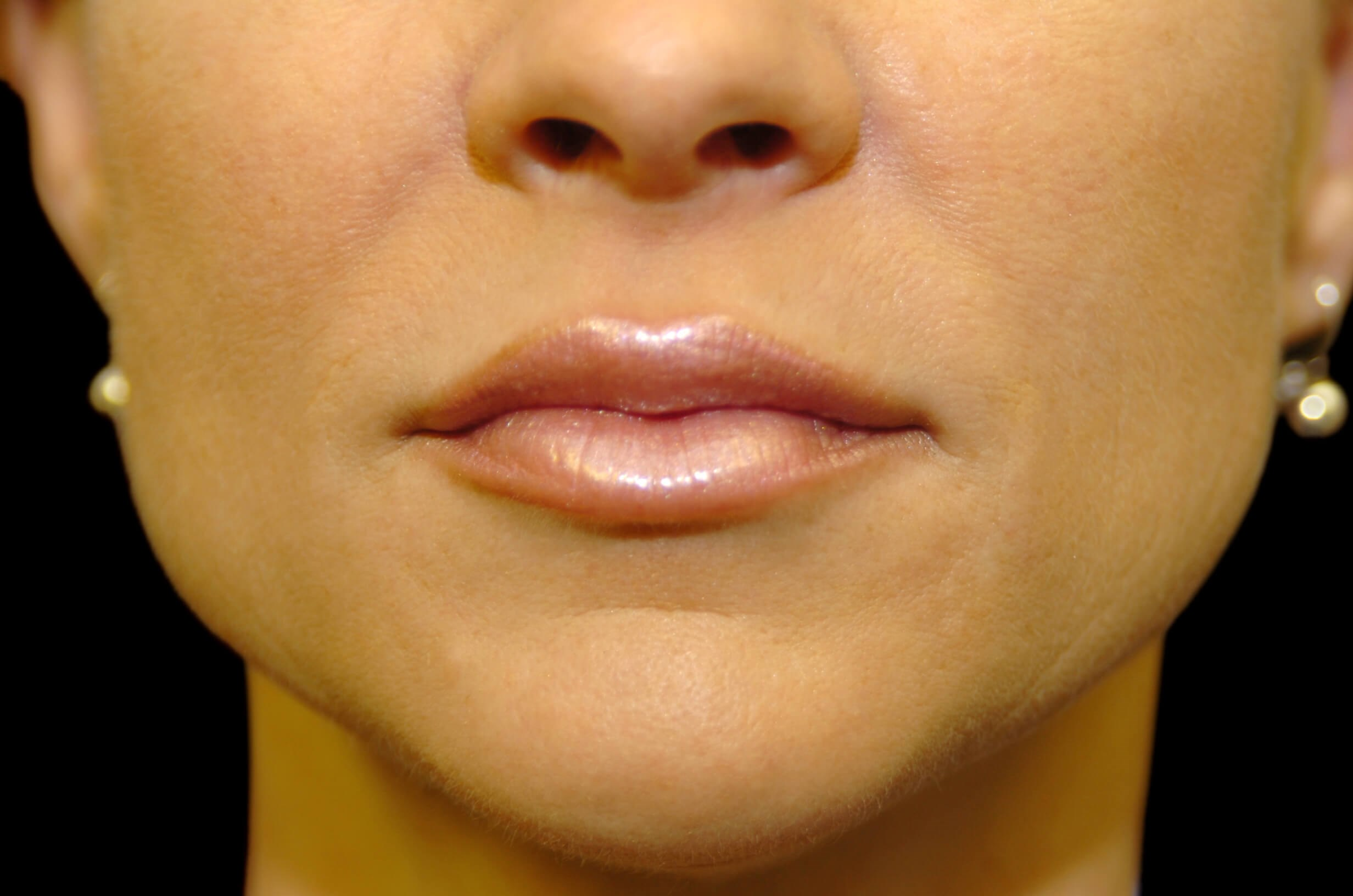 DALLAS, TEXAS WOMAN RESTORES VOLUME AND ENHANCES LIP WITH RESTYLANE LIP FILLER