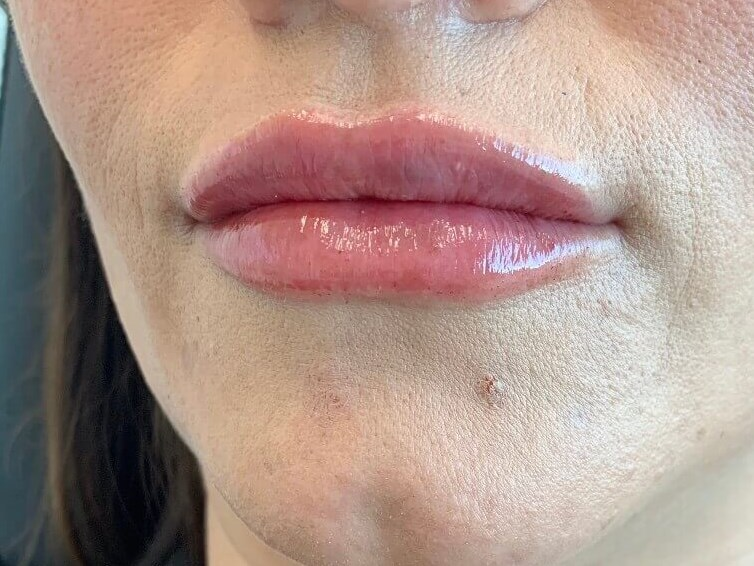 DALLAS, TEXAS WOMAN HAS LIP AUGMENTATION WITH RESTYLANE DEFYNE HA DERMAL FILLER