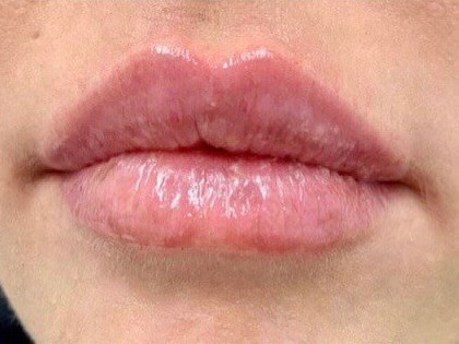 WOMAN IN DALLAS, TEXAS HAS LIP AUGMENTATION WITH RESTYLANE REFYNE HA FILLER