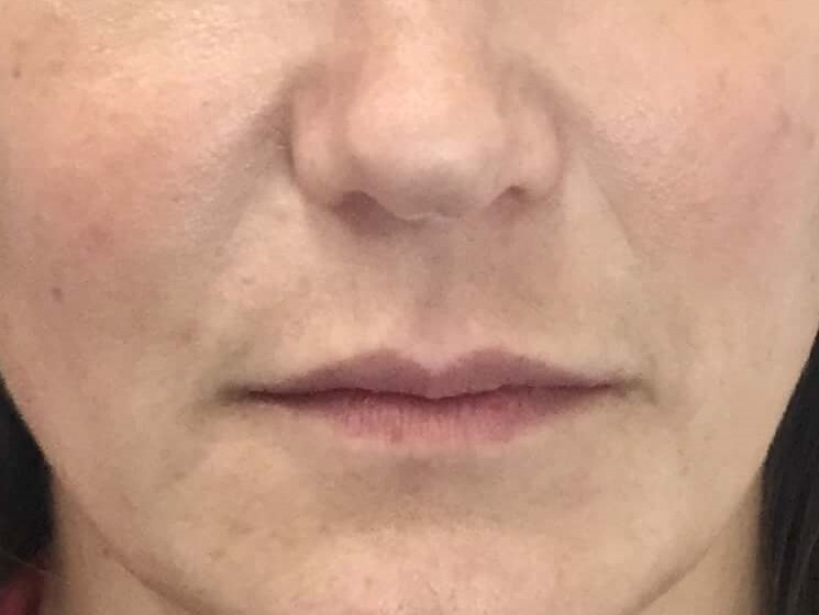 DALLAS WOMAN HAS SMILE LINE CORRECTION WITH RESTYLANE DEFYNE