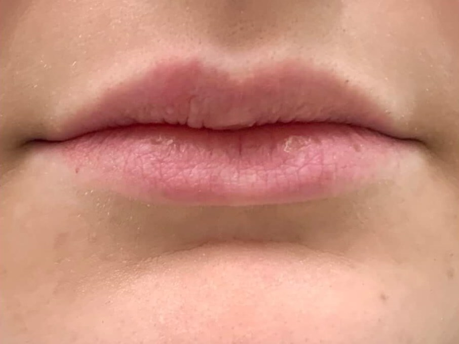 LIP AUGMENTATION USING RESTYLANE FOR DALLAS WOMAN