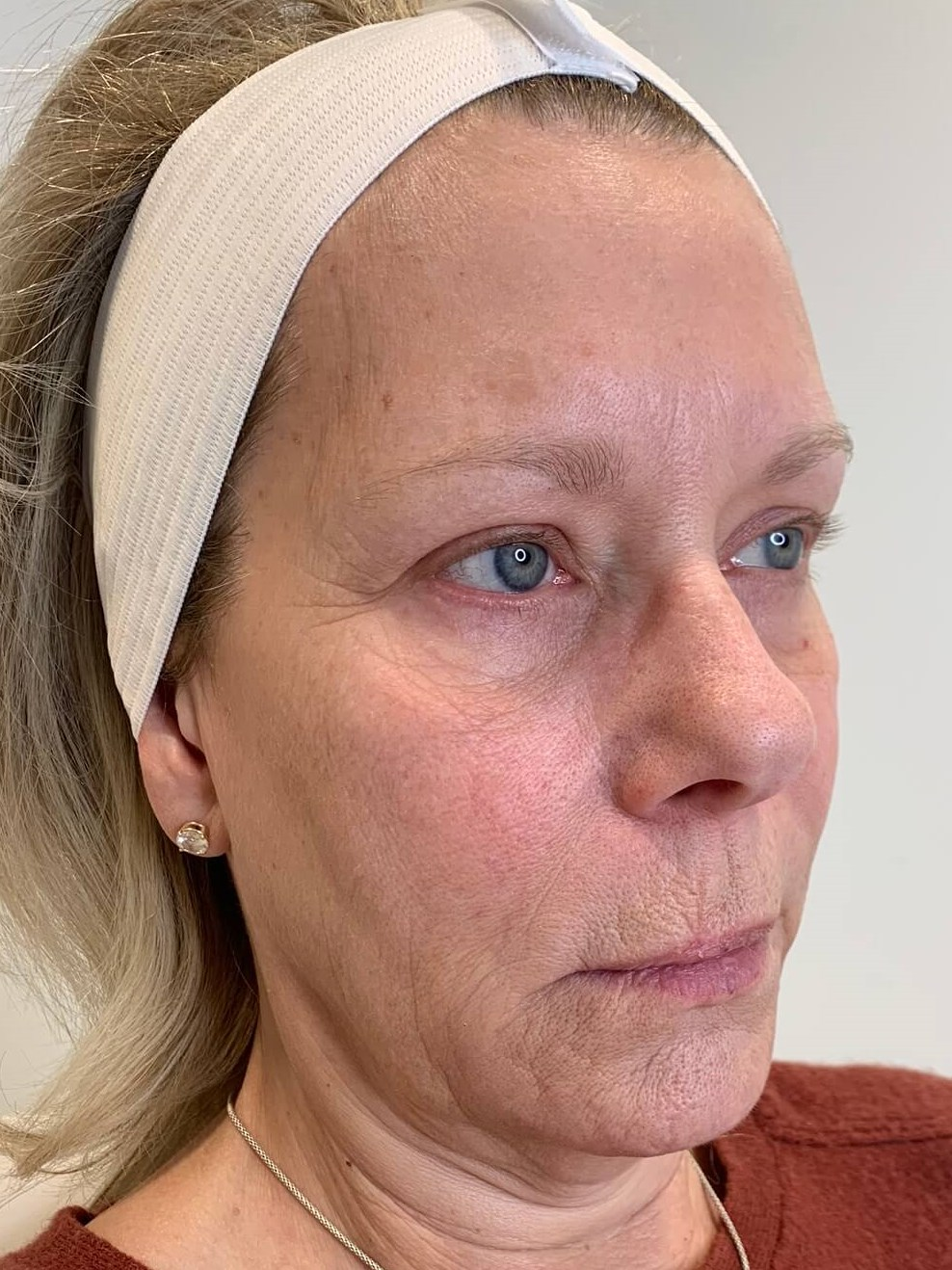 VOLUME AND CHEEK CONTOUR CREATED USING RESTYLANE LYFT FOR DALLAS WOMAN