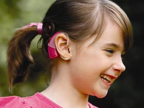 cochlear implant 500