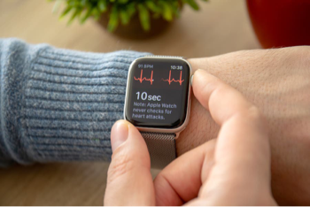 Patient using Apple Watch Series 4 for Heart Rate Monitoring