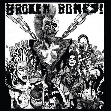 Broken Bones - Dem Bones