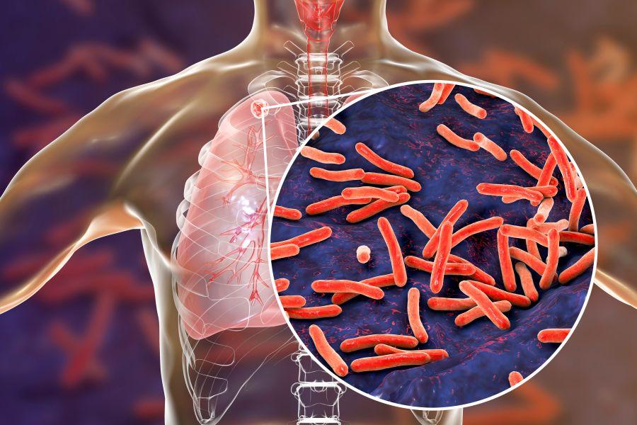 Tuberculosis in New Zealand