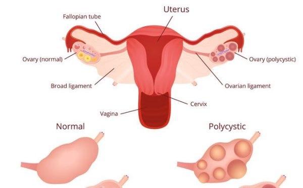Những chị em bị buồng trứng đa nang thường có chu kỳ kinh nguyệt không đều.