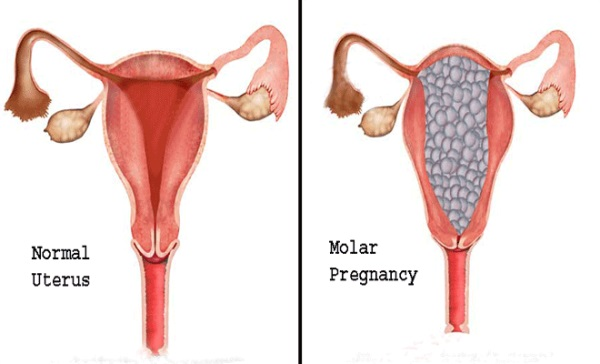 Chỉ số HCG quá cao có thể liên quan tới tình trạng chửa trứng.