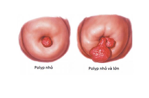 Polyp cổ tử cung là một trong những bệnh lý phụ khoa không hiếm gặp