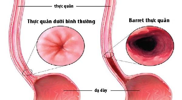 Barrett thực quản là yếu tố nguy cơ chính gây ung thư thực quản