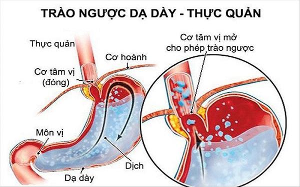 Trào ngược dạ dày có nguyên nhân từ thực quản, dạ dày hoặc các cơ quan khác trong cơ thể