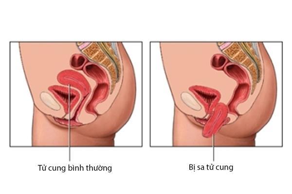 Sa tử cung gồm 5 giai đoạn khác nhau