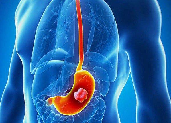 Dấu hiệu của ung thư dạ dày thường diễn ra âm thầm ở giai đoạn sớm