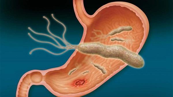 HP gây viêm loét dạ dày