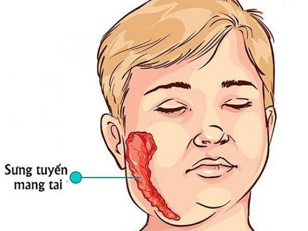 Quai bị là bệnh lành tính do virus ARN thuộc Rubulavirrus trong họ Paramyxoviridae gây ra
