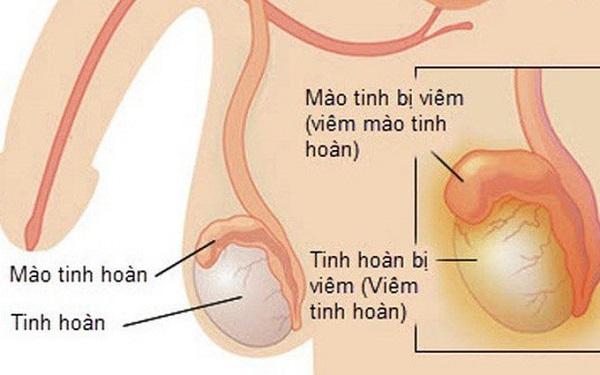 Biến chứng viêm tinh hoàn gây vô sinh ở nam giới khi bị quai bị