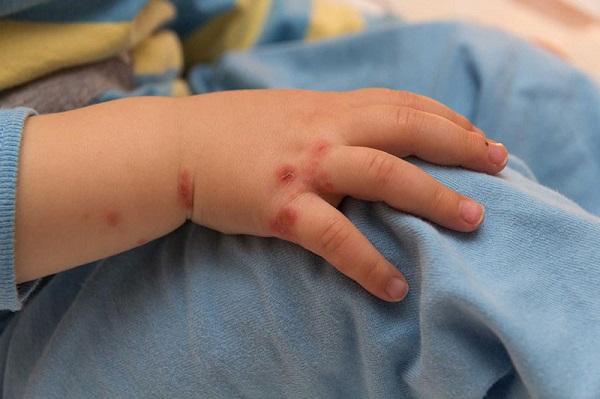 dấu hiệu nghi ngờ trẻ mắc tay chân miệng