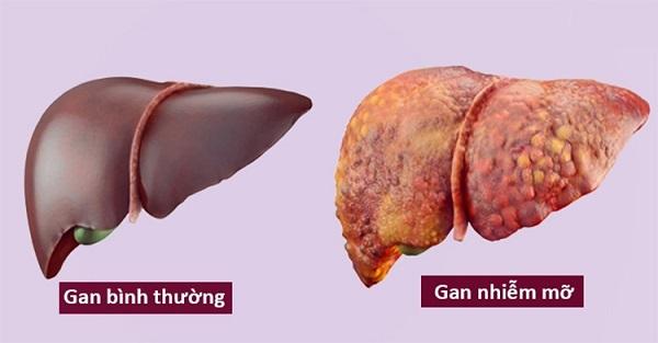 Gan nhiễm mỡ gây ảnh hưởng chức năng gan và đe dọa sức khỏe người bệnh